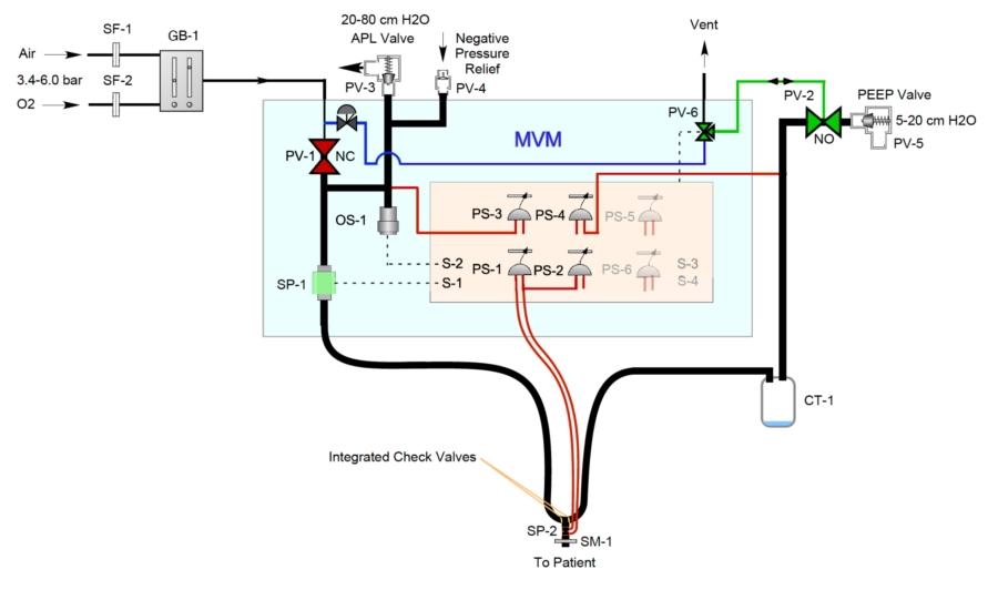 Schematic Design of MVM ventilator